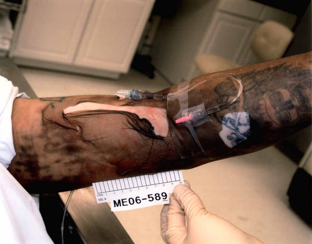 Death row inmate Angel Diaz's left arm showing chemical burns after having the lethal injection administered, skin peeled prior to autopsy.